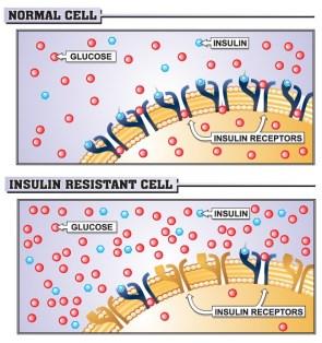 Insulin-Resistance-A.Floyd_